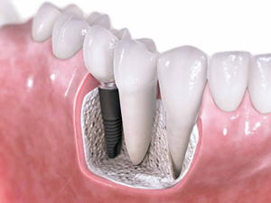 Why Chron's Disease Could Make a Difference When It Comes to Getting Dental Implants