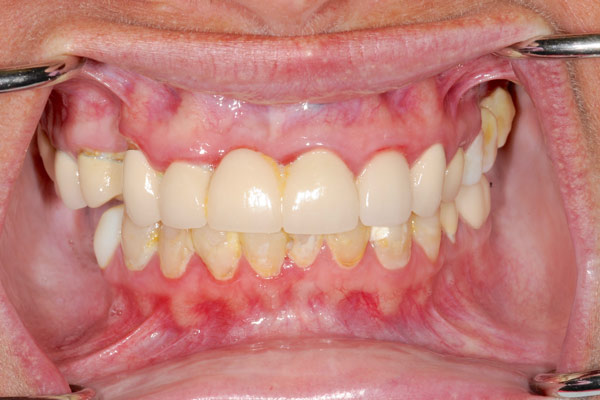 image of baylakes complex dentistry smile gallery before2