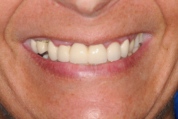 image of baylakes complex dentistry smile gallery before3