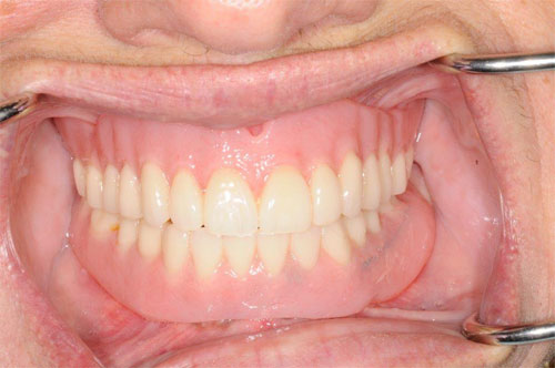 before and after overdenture 2
