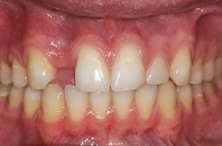 single implant restoration 1