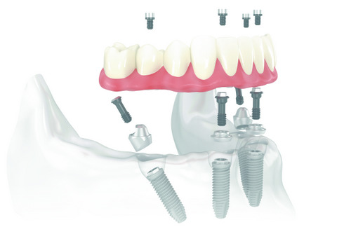 Diagram of how All-On-4 Treatment Concept is placed in the jaw at Bay Lakes Center for Complex Dentistry