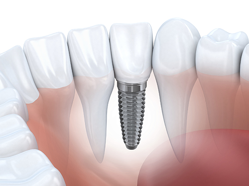 Dental Implant Bay Lakes Center for Complex Dentistry MI 49829-3900