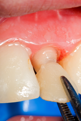 How to Care for a New Porcelain Dental Crown